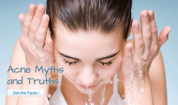 Acne Myths and Truths
